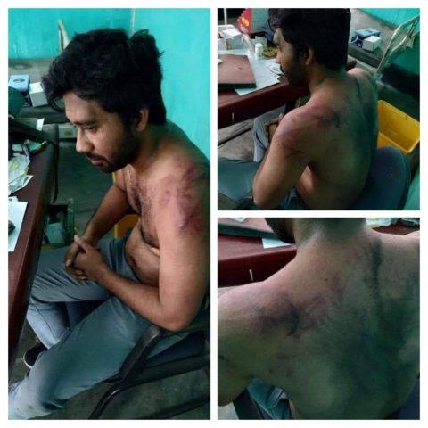 Indie, napadený lékař